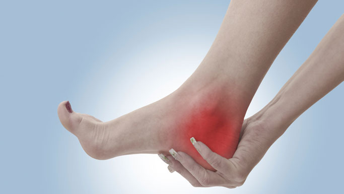 San Leandro Chiropractic Treatment for Plantar Fasciitis